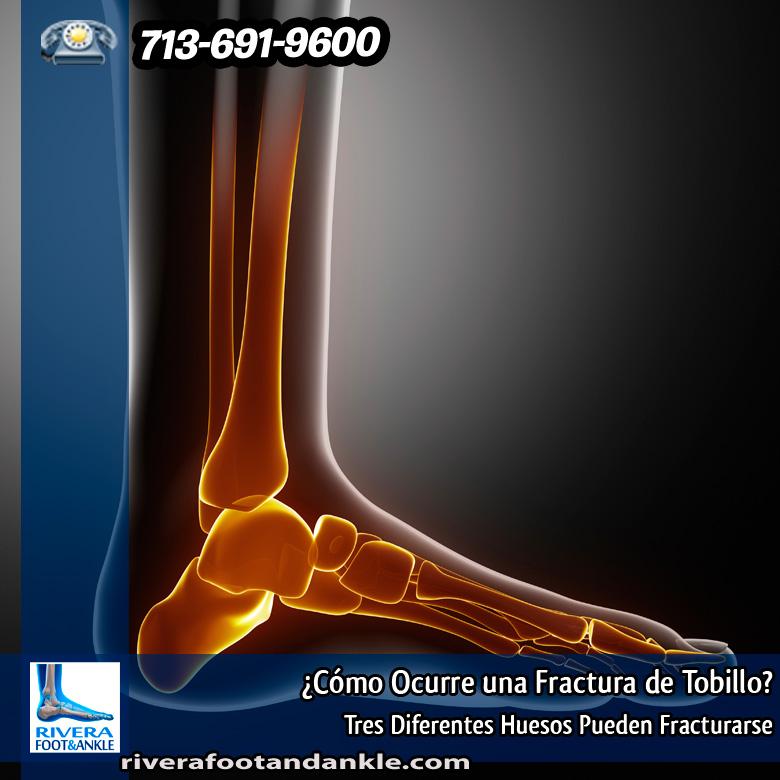 Cómo Ocurre una Fractura de Tobillo? - Rivera Foot and Ankle