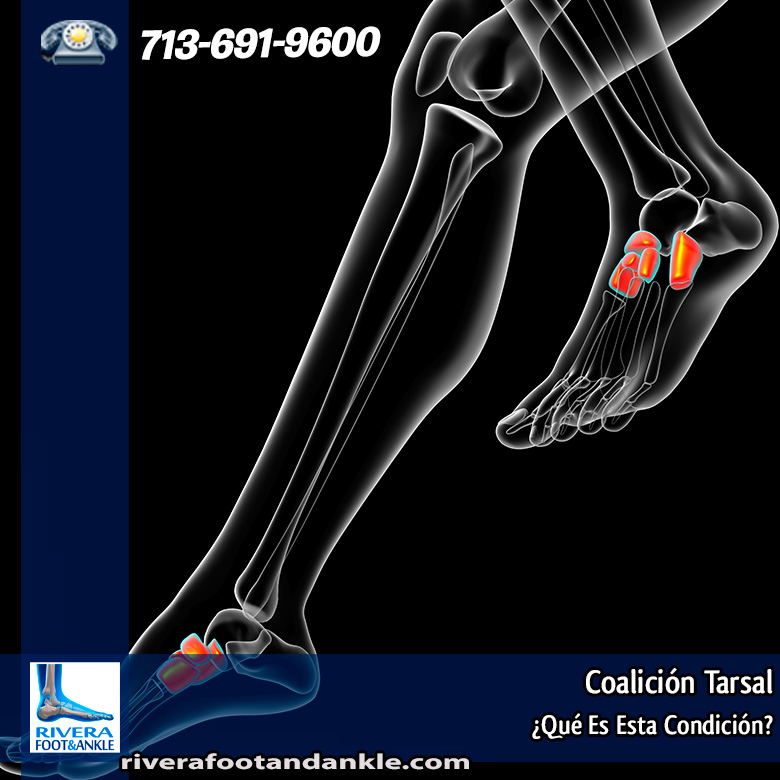 Coalición Tarsal - Rivera Foot and Ankle