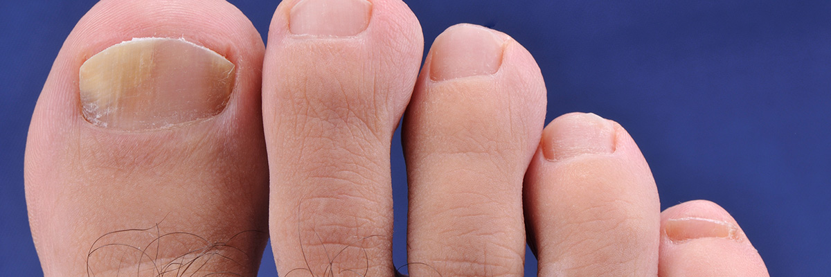 Do You Have Toenail Fungus? - Rivera Foot and Ankle