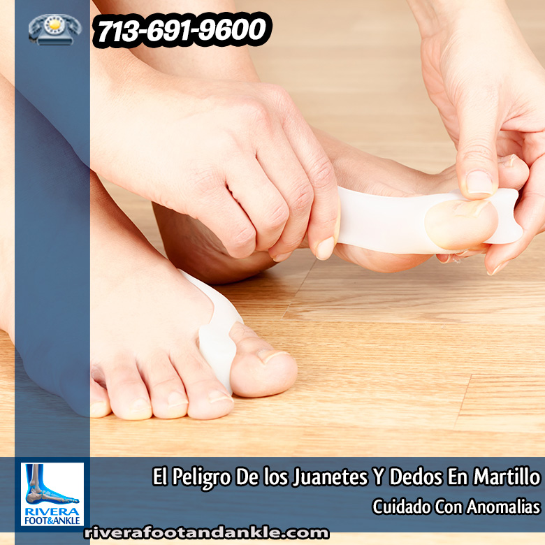 El Peligro De los Juanetes Y Dedos En Martillo - Rivera Foot and Ankle