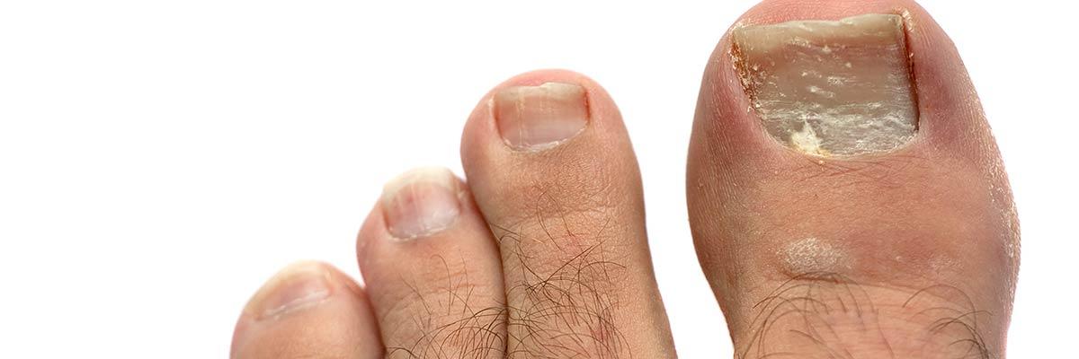 Uñas de los Pies Agrietadas y Amarillas: Causas - Rivera Foot and Ankle