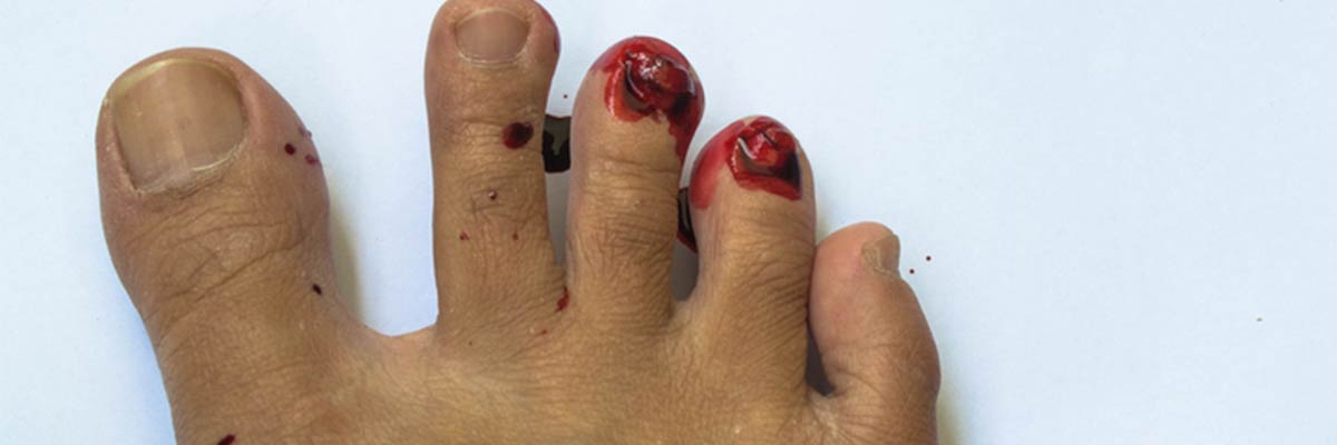Broken Toe Facts - Rivera Foot and Ankle