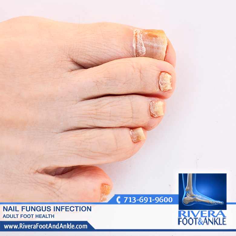 Nail Fungus Infection - Rivera Foot and Ankle
