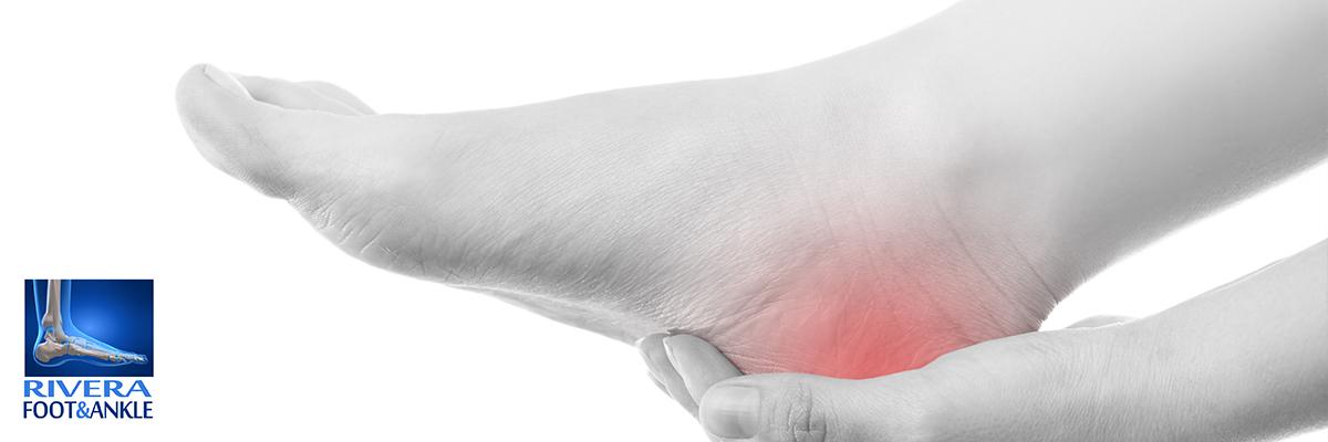 Síndrome del túnel tarsiano - Rivera Foot and Ankle