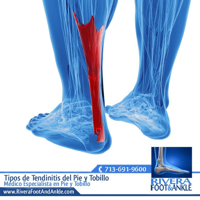 Dorable Anatomía De Los Tendones Del Tobillo Molde - Imágenes de ...