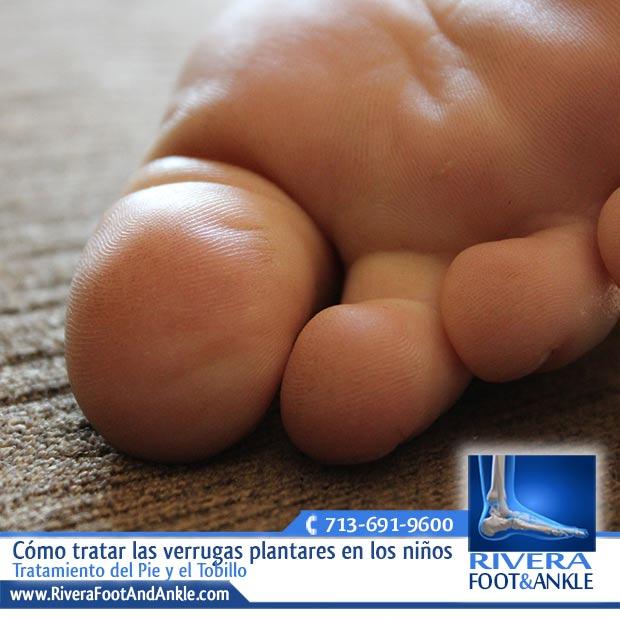 Cómo tratar las verrugas plantares en los niños - Rivera Foot and Ankle
