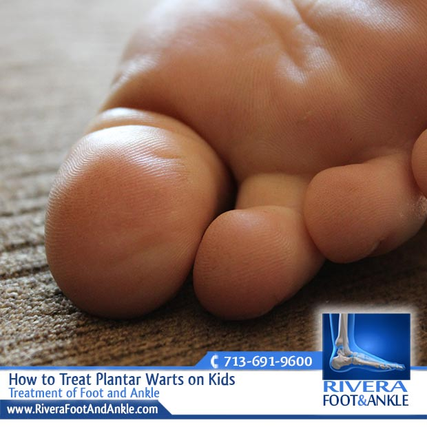 How to Treat Plantar Warts on Kids - Rivera Foot and Ankle