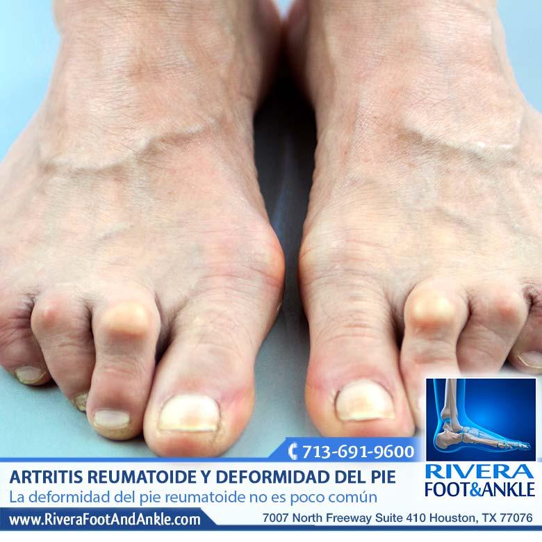Artritis Reumatoide y Deformidad del Pie - Rivera Foot and Ankle