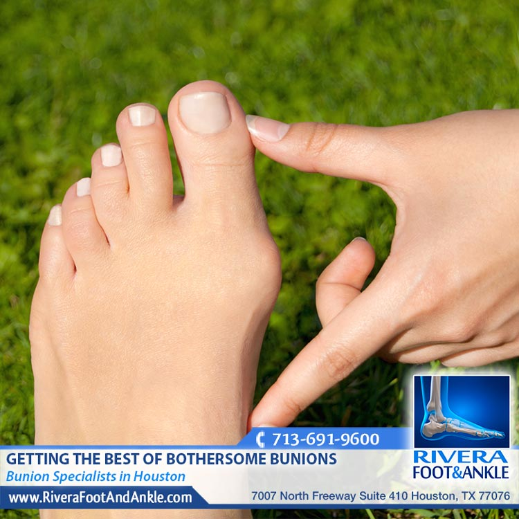 110618 Bunion Specialists in Houston Texas