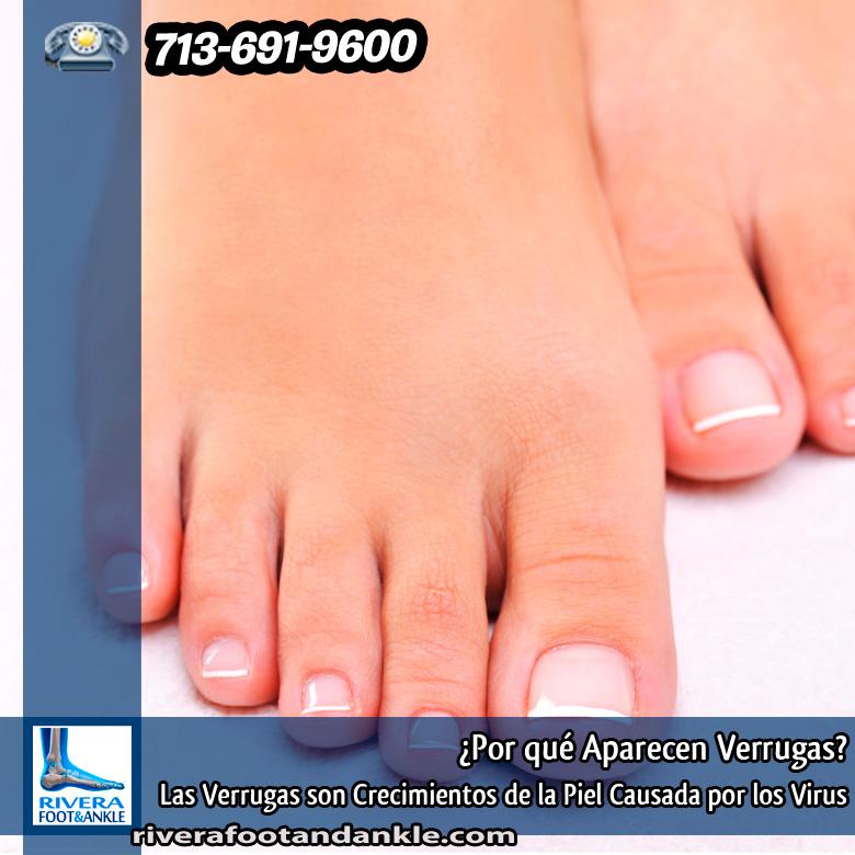 Por qué Aparecen Verrugas? - Rivera Foot and Ankle