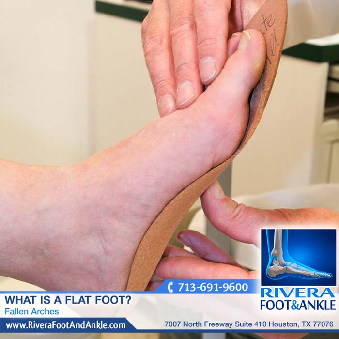 Rivera Foot and Ankle The 5 Unhealthy Side Effects Of